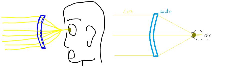 ecb0eb5960 De ñapa les dejo cómo funciona el ojo en distintas enfermedades: